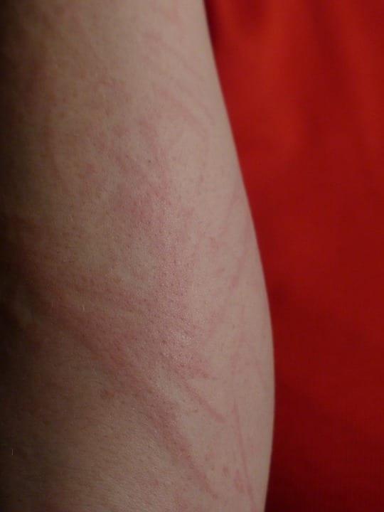 Jak připravit domácí léky na kožní vyrážky?