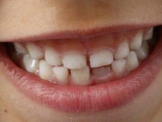 Co pomůže rozbolavěným dásním?