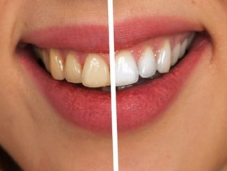 3 základní návyky pro zdravé zuby