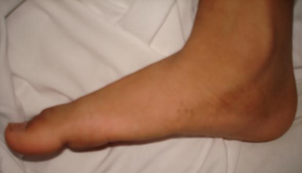 Cviky, které vám pomohou snápravou ploché nohy