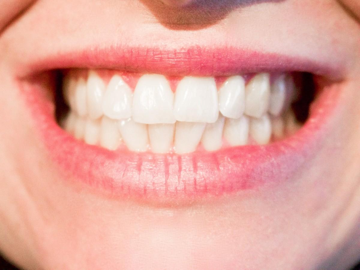 5 denních návyků, které vám kazí zuby